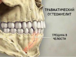 - механический травматизм челюстного аппарата;