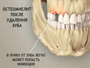 - глубокие кариозные поражения, которые вызывают инфекции в зубной единице;