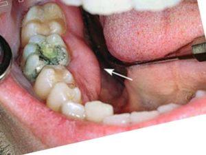 - периодонтальная – воспаление около периодонтальной щели;