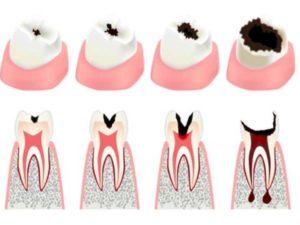 - полная непроходимость каналов в корнях зубных единиц;