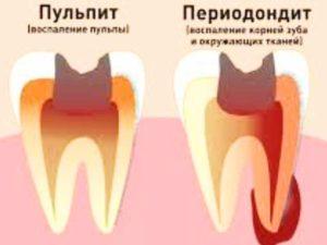 - эндооссальная – гной уже в костной ткани;