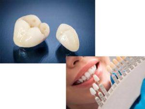 - защитный барьер от внешней провокации зубов, заранее обточенных и пребывающих в ожидании протезирования;