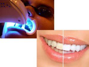 - отбеливающая Luma Cool-лампа;