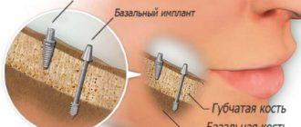 Универсальность имплантов достигается с помощью супраструктур и их фиксации