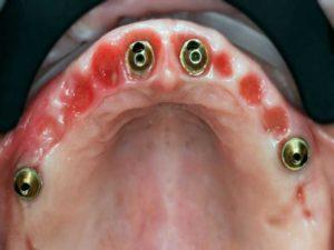 Наличие глубокого повреждения зуба;