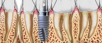 Trefoil - система созданная для восполнения нижней челюсти всех отсутствующих зубов