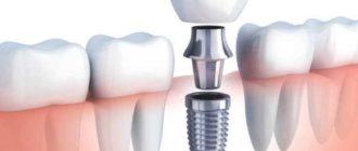 При базальном методе на один зубной ряд может устанавливается до 12 имплантов