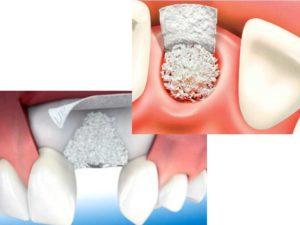 Снижение плотности костей, иные патологии;