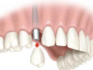 Имплант проходит этап приживления (до 6 месяцев) на верхней челюсти и до 3-х месяцев на нижней;