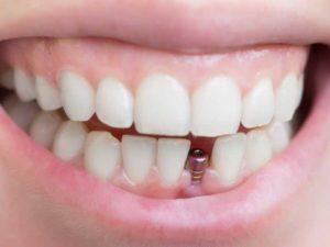 Не тщательное проведение гигиены полости рта;